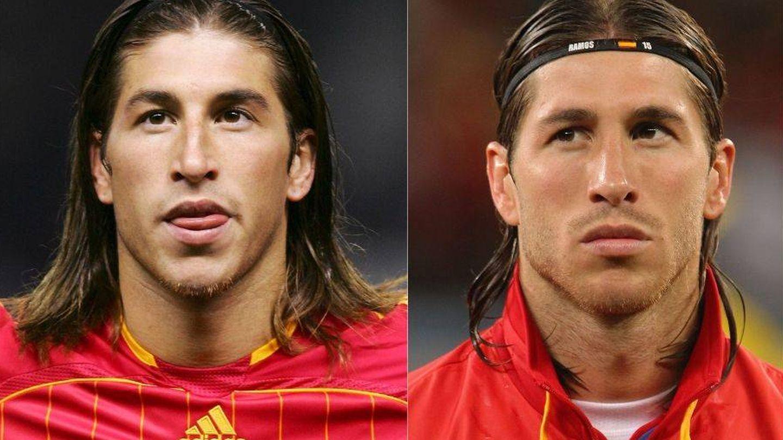 La evolución en la mandíbula de Sergio Ramos. (Getty)