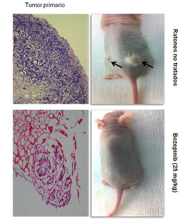 Foto: Cortes histológicos de un tumor primario antes y después de ser tratado con Bozepinib. (Universidad de Granada)