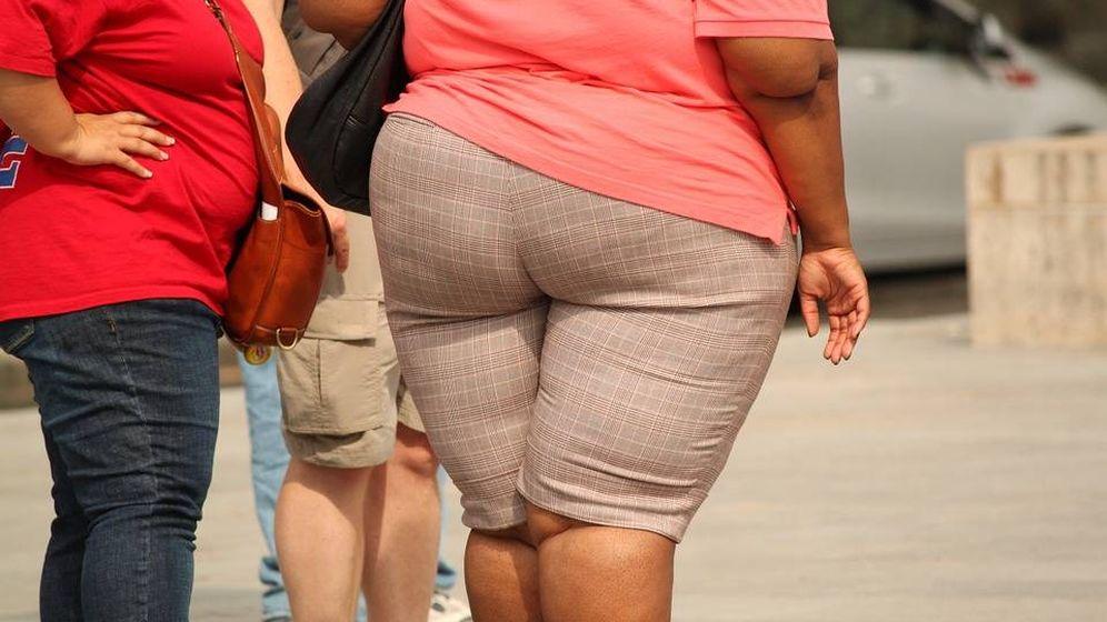 Foto: Joven con obesidad. Foto: Pixabay.