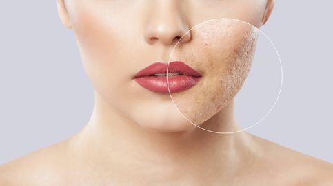 Estos son los efectos de la cuarentena para tu piel (y cómo cuidarla)