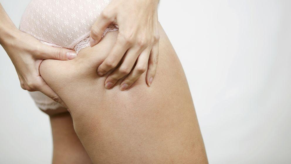 9 mitos y verdades sobre la celulitis (y sobre cómo terminar con ella)