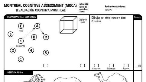 El examen de 10 minutos que desvela si sufres problemas cognitivos