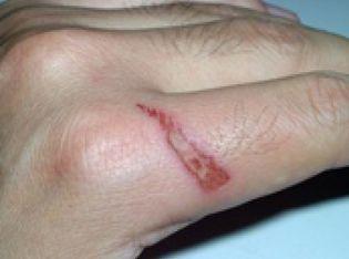 Foto: Diez consejos para curar correctamente una herida