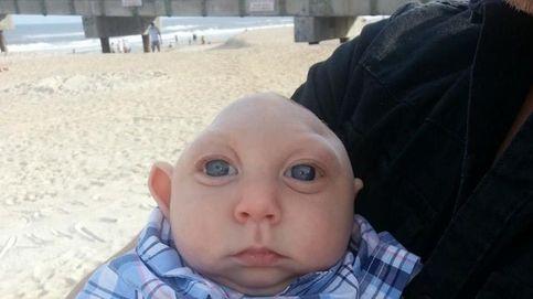 La historia de superación de Jaxon, el bebé que nació sin parte de su cráneo