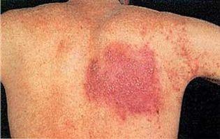 Foto: El herpes zóster tiene un componente hereditario