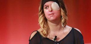 Post de La Miss italiana que fue desfigurada con ácido por su ex da la cara en televisión