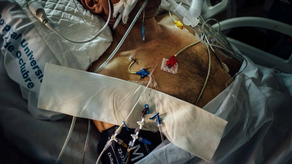 Los médicos: La gran laguna son los cuidados paliativos, no la eutanasia