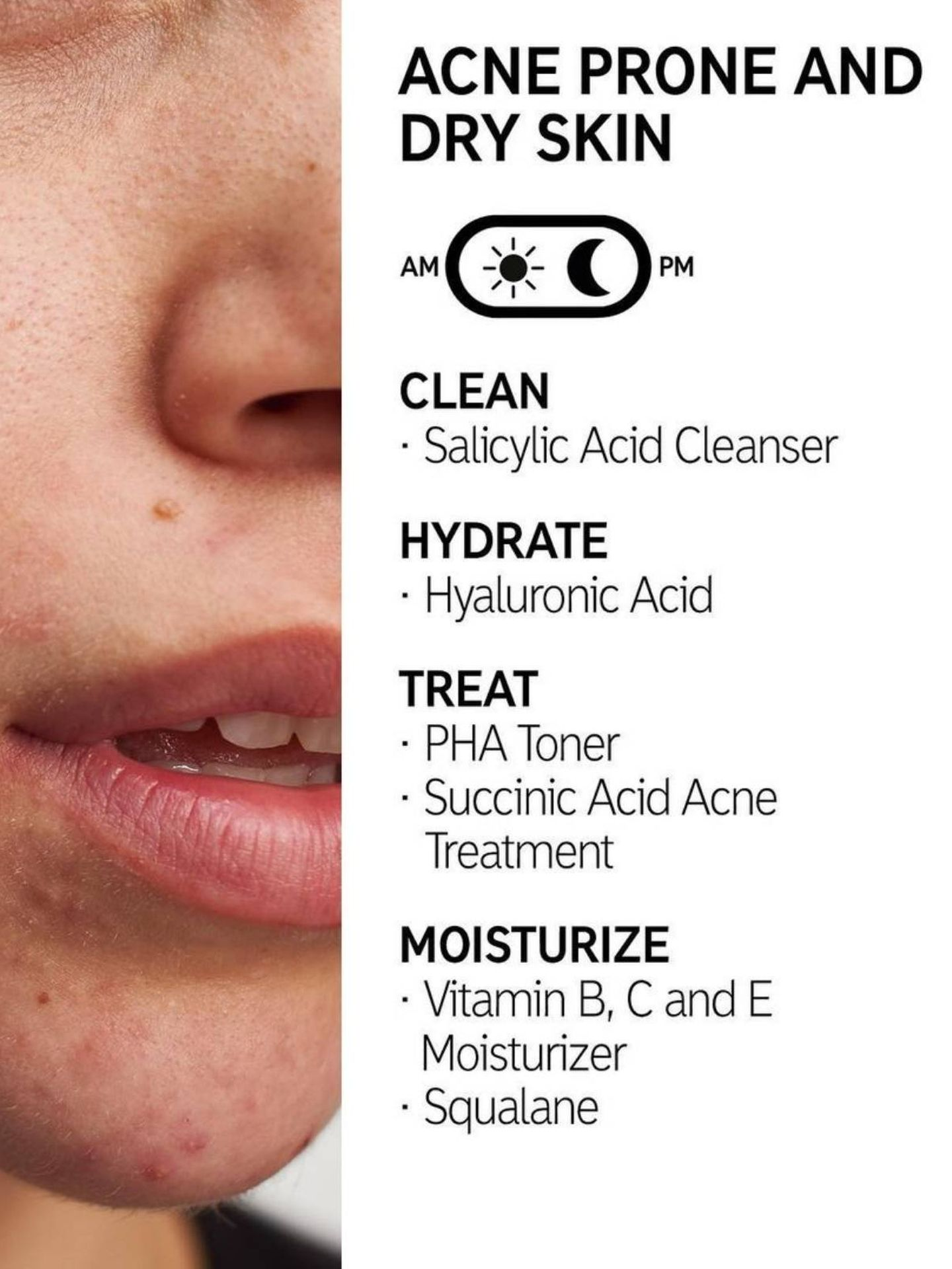 Consejos de The Inkey List para pieles secas y con acné. (Instagram @theinkeylist)