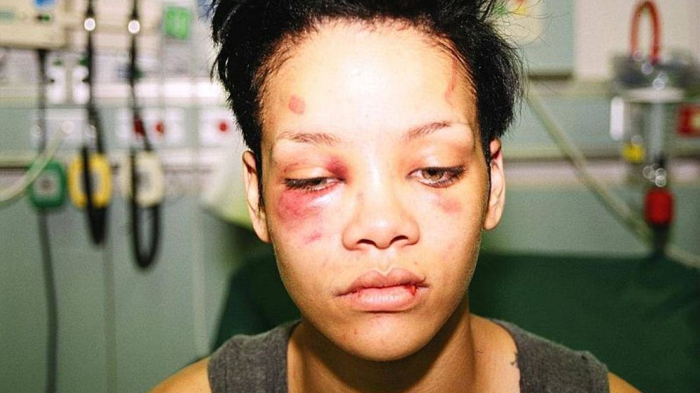 Foto: Imagen de Rihanna publicada por ella en redes sociales para denunciar la paliza que le dio Chris Brown.