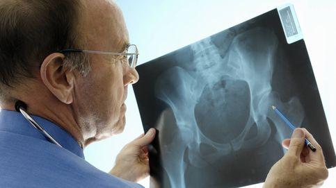 Las 5 cosas que nadie te suele contar sobre la osteoporosis