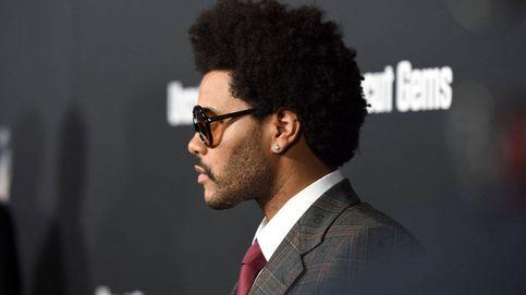 The Weeknd, del peinado piña a la cirugía estética: quién es y por qué es un icono