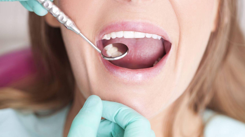 Foto: Una visita al dentista no solo es buena para la caries. (iStock)