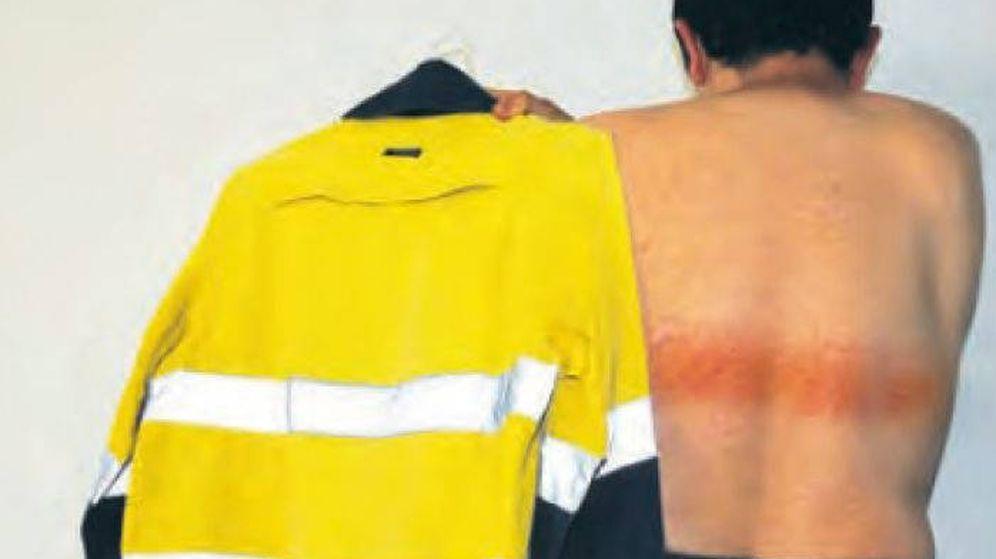 Foto: La banda provocó quemaduras de primer grado en la espalda del trabajador (Foto: Medical Journal of Australia)