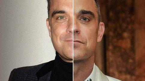 Ellos también se retocan: Robbie Williams, Cruise... antes y después del bótox