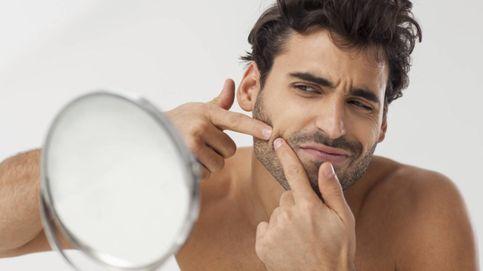 Cómo evitar la tentación de explotarte una espinilla de la cara