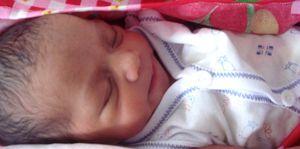 Foto: Un gel con progesterona reduce el riesgo de parto prematuro