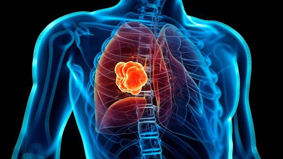 ¿Qué posibilidades hay de heredar un cáncer de pulmón?