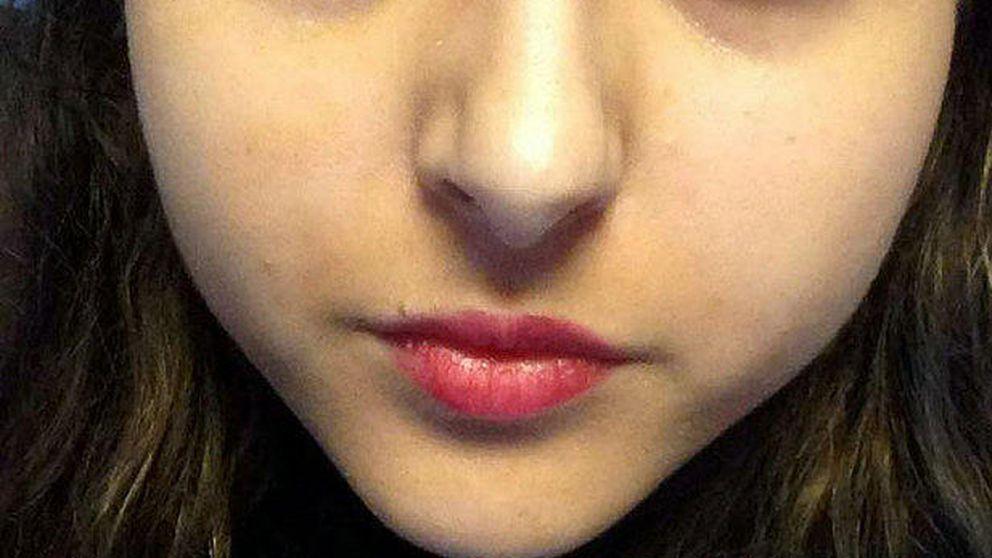Una adolescente pasa una semana sin dormir para matar a un gusano en el ojo