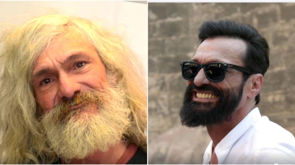 Foto: Josete antes y después