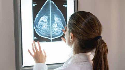 Un análisis de sangre para detectar el riesgo de sufrir cáncer de mama