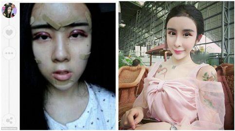 Una joven de 15 años pasa por quirófano para recuperar a su novio