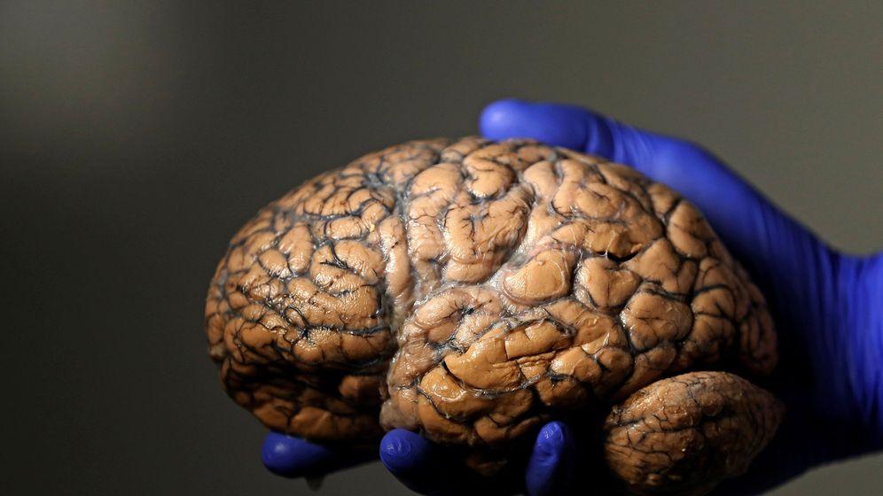 Foto: Imagen de archivo de un cerebro. (Reuters)