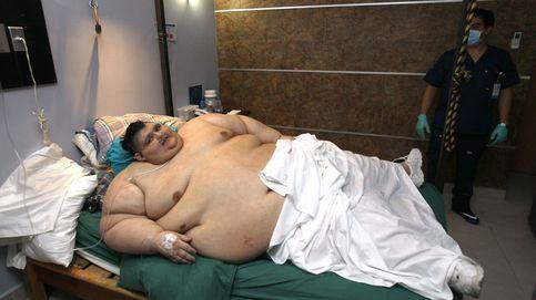 El que fue el hombre más gordo del mundo supera el coronavirus