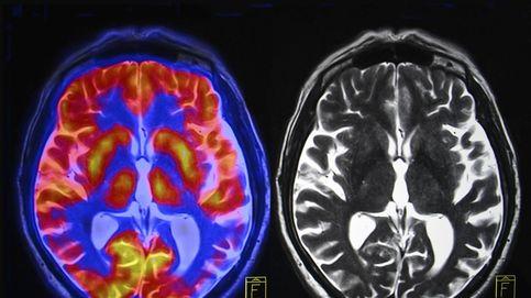 Investigan una herramienta para diagnosticar alzhéimer en un solo día (y antes de tener síntomas)