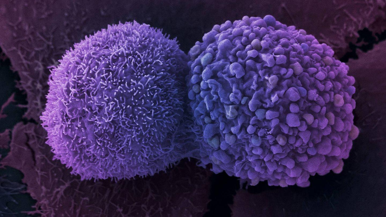 Células de cáncer de pulmón. (Anne Weston / Francis Crick Institute)