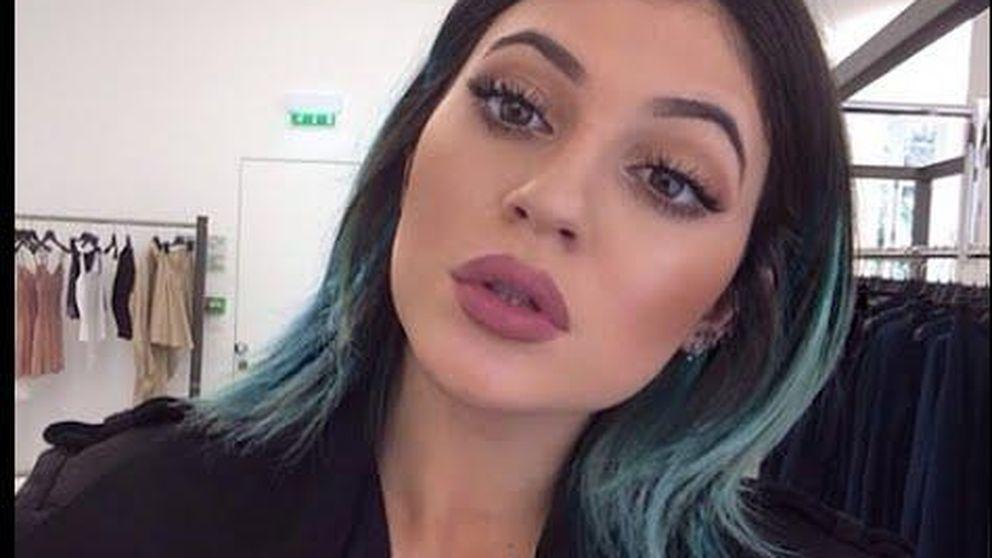 Twitter - Los seguidores de Kylie Jenner se deforman los labios para imitarla