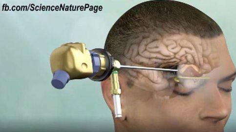 Nueva forma de extirpar tumores malignos del cerebro