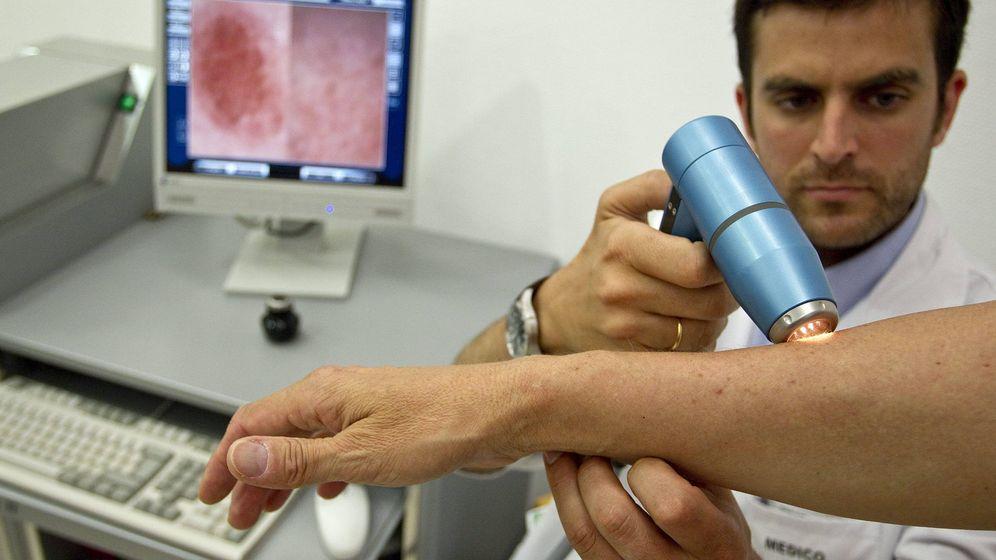 Foto: Con más de 11 lunares en el brazo derecho supondría un riesgo mayor que el de la media de desarrollar cáncer de piel o melanoma (EFE)