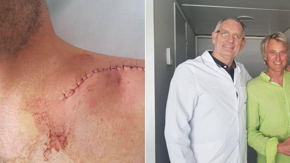 Foto: Jesús Calleja con el doctor Mir y la cicatriz de la operación. (foto jesus calleja)