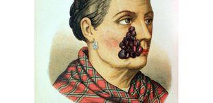 Post de Venéreas y bubones del siglo XIX: bienvenidos al Museo Olavide