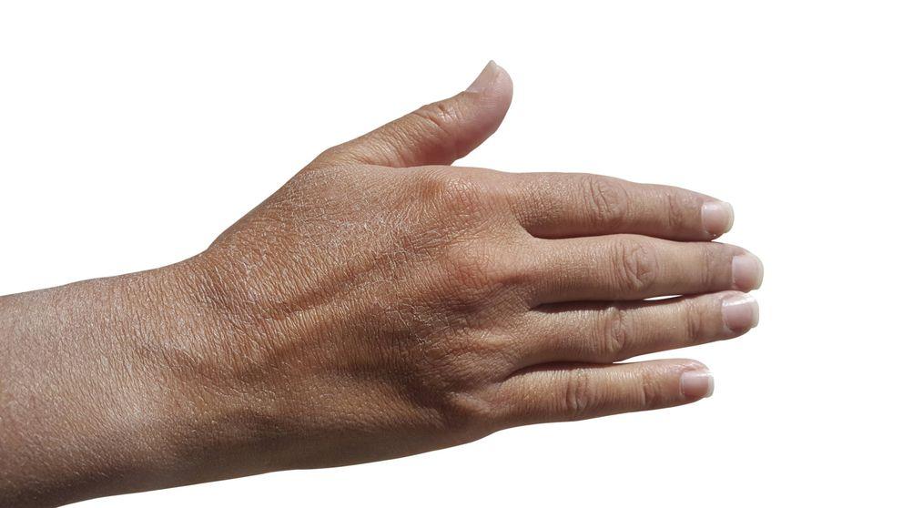 4 problemas de tener la piel seca y que revelan algo mucho peor