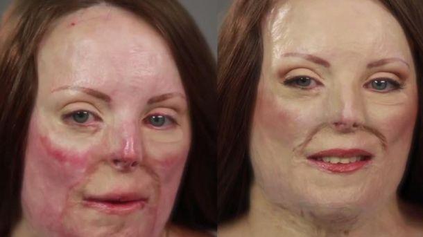 Foto: Bethan Hughes, antes y después de su transformación (YouTube/Telegraph)