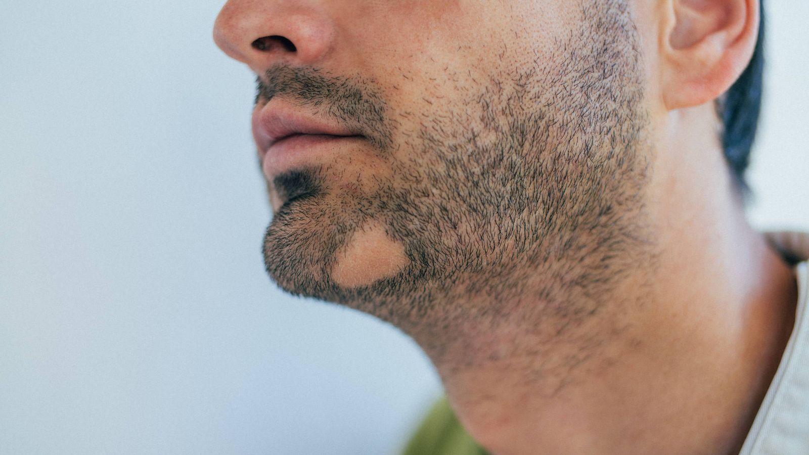 Alopecia areata: origen, duración y solución de las calvas en la barba
