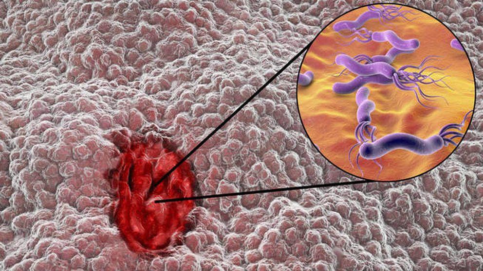 La Helicobacter pylori busca los puntos débiles de la pared gástrica