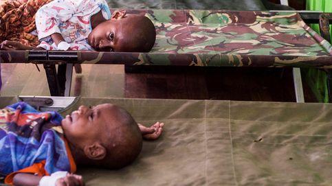 Los niños están muriendo de hambre en la tierra del oro