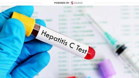 ¿Cómo ha afectado la pandemia del coronavirus a los enfermos de hepatitis C?
