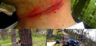 Post de Así te pueden cortar el cuello cuando montas en bicicleta de montaña