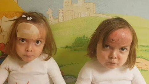 El mensaje de ánimo de las gemelas con piel de mariposa: Quédate en casa