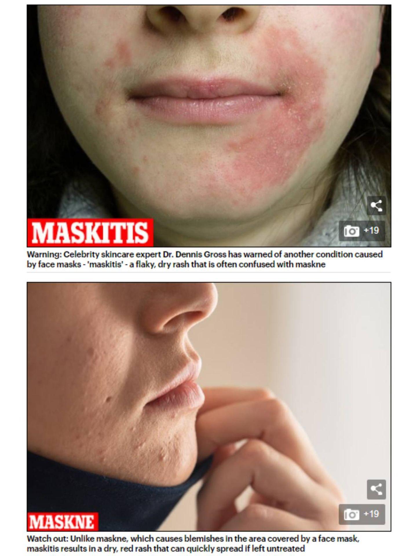 Imagen de un caso de maskitis frente uno de maské en el artículo del Daily Mail 'Are YOU suffering from 'maskitis'?