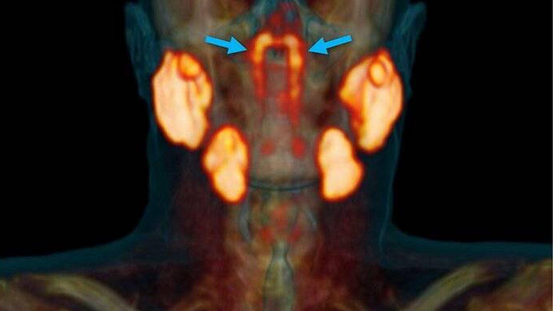 Señaladas con una flecha azul, las glándulas salivales recién descubiertas. Foto: (The Netherlands Cancer Institute