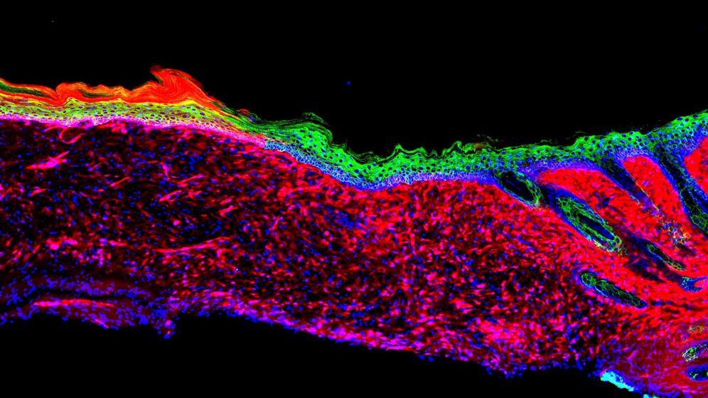 Foto: Investigación abre la puerta a regenerar órganos sin necesidad de trasplantes. (Revista Nature)