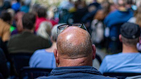 Desarrollan un organoide al que le crece pelo: la cura de la calvicie, más cerca