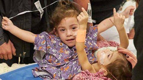 Separan a dos hermanas siamesas de California tras 17 horas de operación