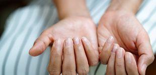 Post de El motivo por el que tienes manchas y líneas blancas en las uñas