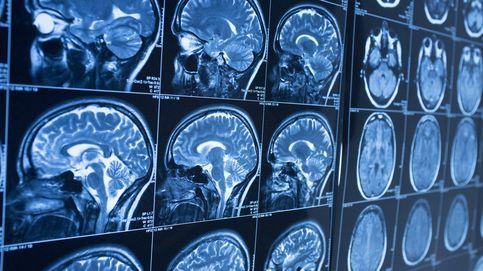 Por qué el Parkinson comienza en el estómago