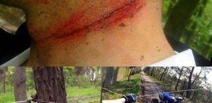 Post de Nueva víctima en bicicleta de un 'cable trampa': crece la advertencia de este peligro